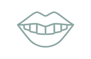 Blekning och tandhygienistbehandling