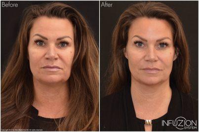 Jämförelse av bilder på Madde förre och efter behandling