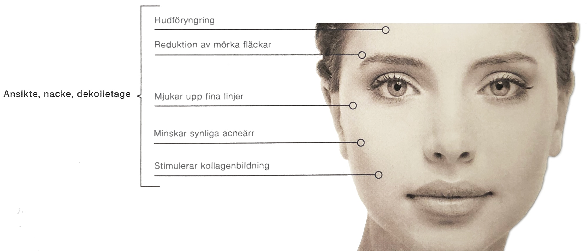 Bild med förklaring av microneedeling proceduren