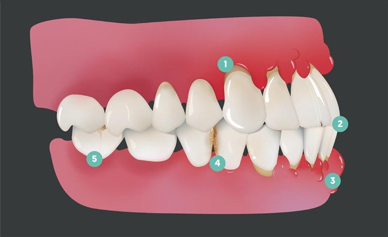 Bild av tänder med noteringar